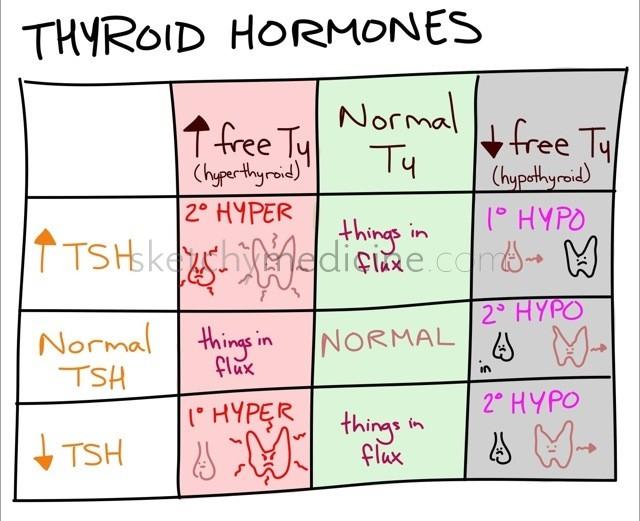 thyroid hormone differential sketchy medicine