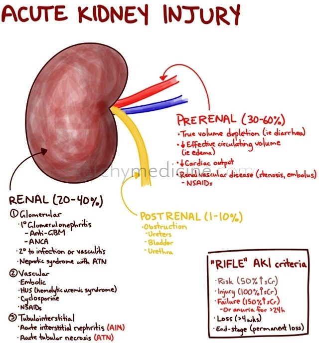 Categories Of Acute Renal Failure