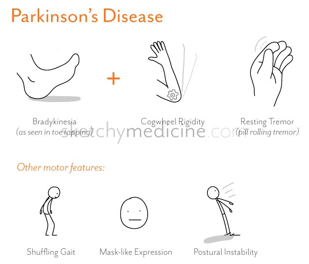 neurological disorder parkinson s disea See how we're treating neurological disorders research the european parkinson's disease association estimates that 12 million people have pd in the.