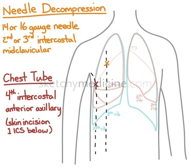Lung Surface Anatomy And Chest Tubes Vs Needle Decompression