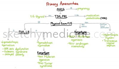 amenorrhea---primary