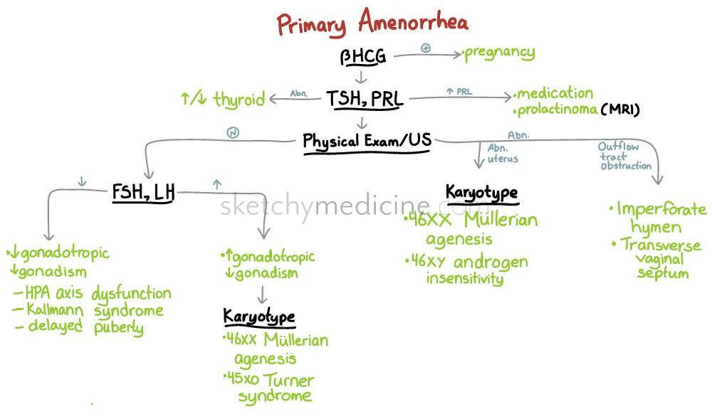 approach to primary amenorrhea | sketchy medicine, Skeleton