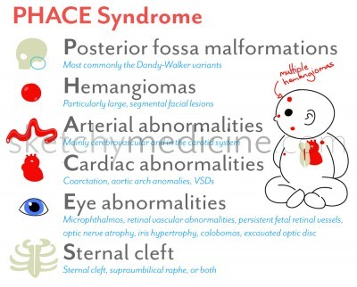 PHACE_syndrome