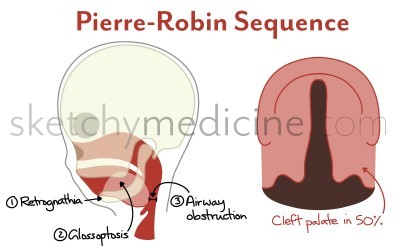 pierre-robin-sequence