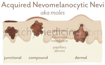 nevomelanocytic-nevi