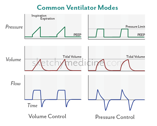 ventilator simply gives an additional boast of inspiratory pressure to