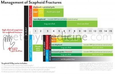 scaphoid-flow-chart