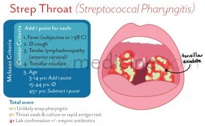 strep-pharyngitis