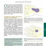 Dosage of local anesthesia in wide-awake hand surgery