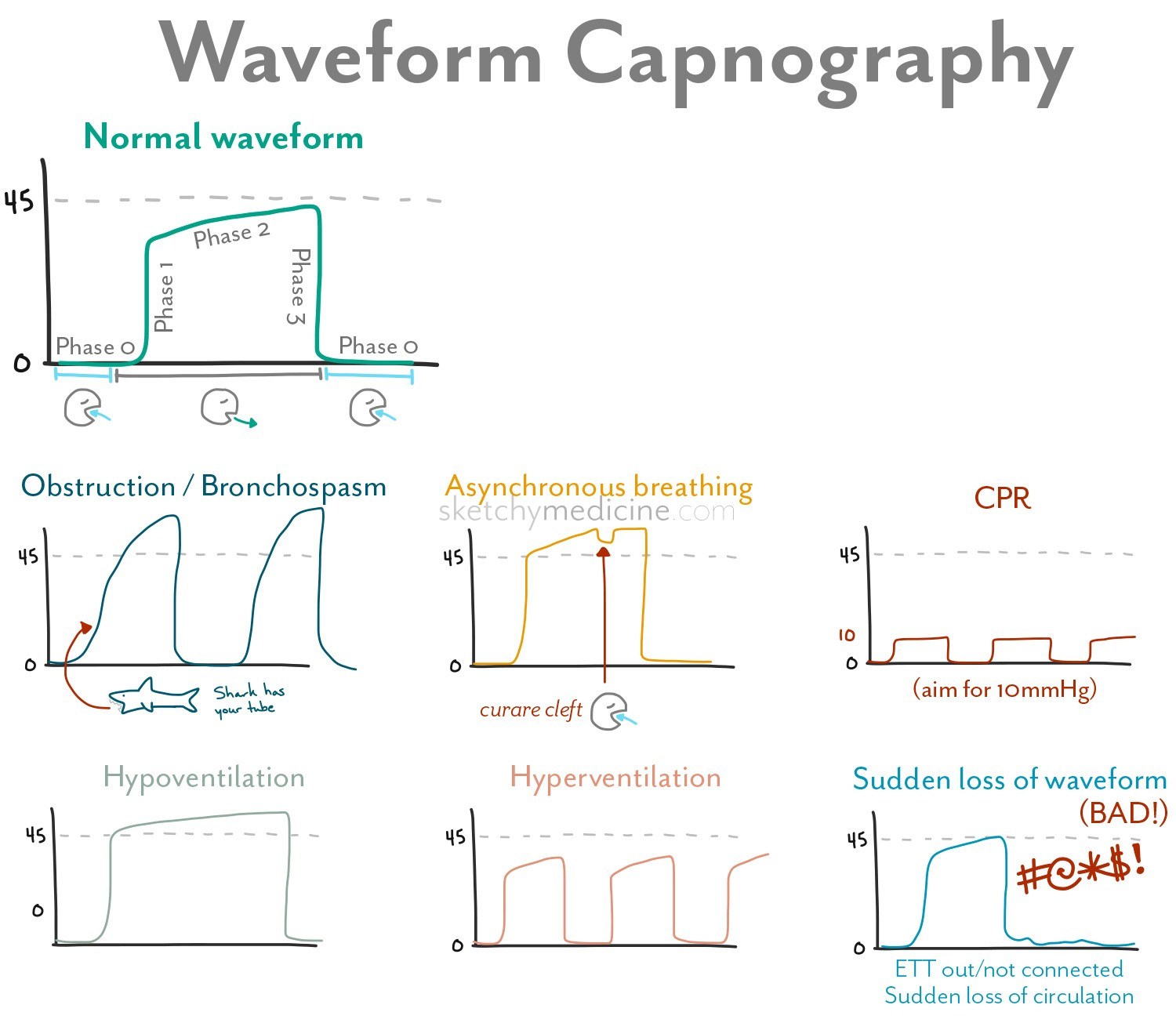 Waveform Capnography Sketchy Medicine
